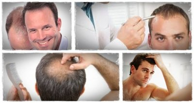 how to regrow my hair naturally